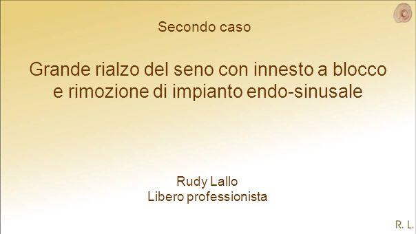 Grande rialzo del seno con innesto a blocco e rimozione di impianto endo-sinusale Rudy Lallo Libero professionista Secondo caso