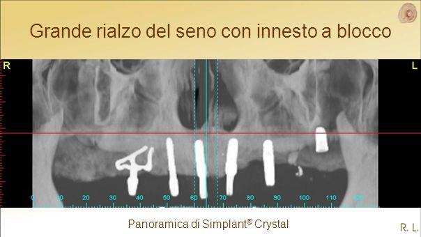 Grande rialzo del seno con innesto a blocco Panoramica di Simplant ® Crystal