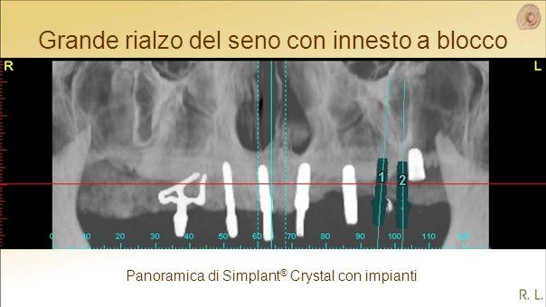 Panoramica di Simplant ® Crystal con impianti