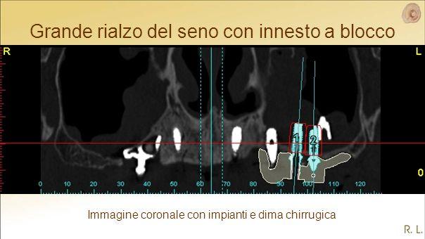 Grande rialzo del seno con innesto a blocco Immagine coronale con impianti e dima chirrugica