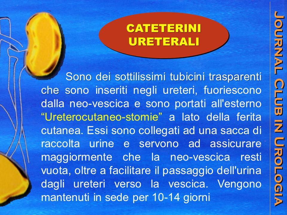 Journal Club in Urologia CATETERINIURETERALI Sono dei sottilissimi tubicini trasparenti che s Sono dei sottilissimi tubicini trasparenti che sono inse