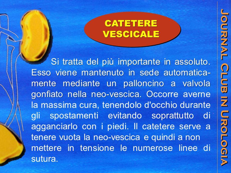 Journal Club in Urologia CATETERE VESCICALE Si tratta del più importante in assoluto.