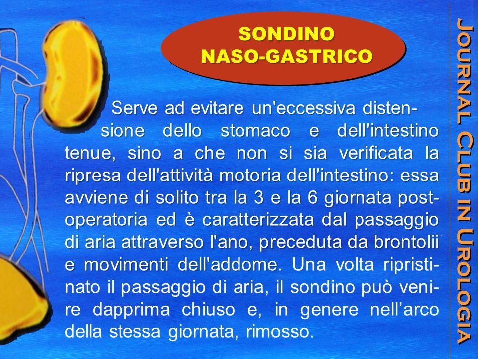 Journal Club in Urologia SONDINONASO-GASTRICO Serve ad evitare un'eccessiva disten- Serve ad evitare un'eccessiva disten- sione dello stomaco e dell'i