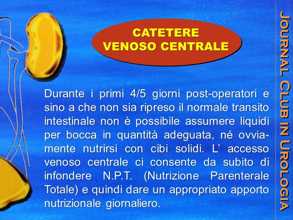 Journal Club in Urologia CATETERE VENOSO CENTRALE Durante i primi 4/5 giorni post-operatori e sino a che non sia ripreso il normale transito intestina