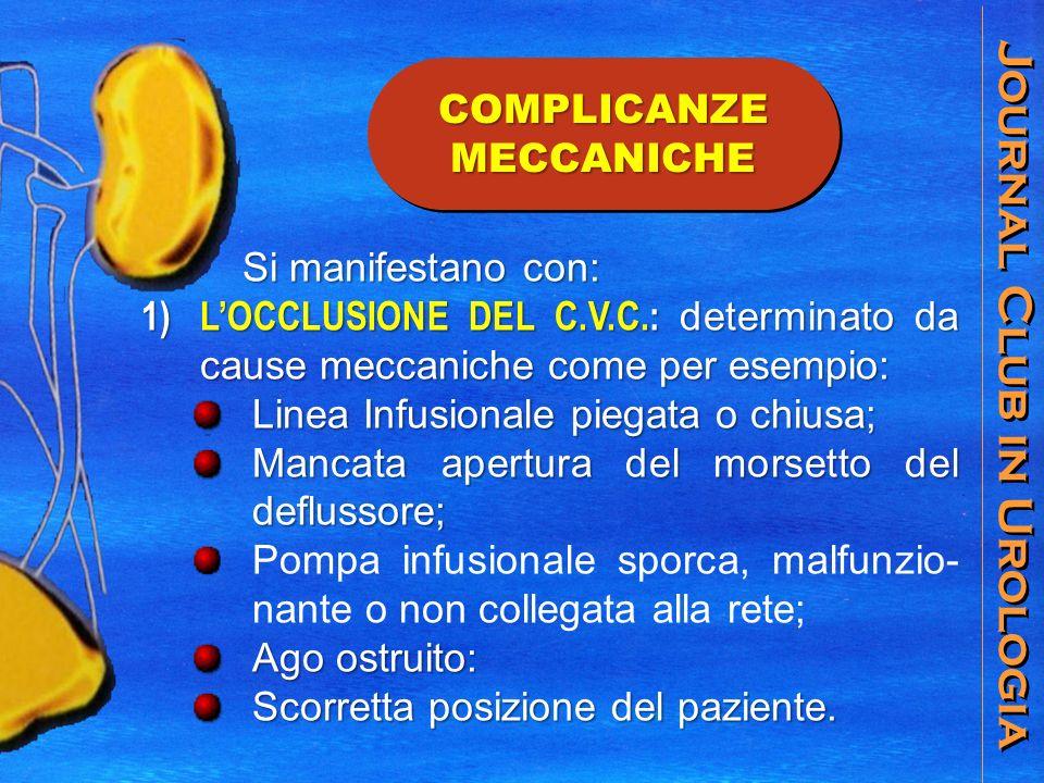 Journal Club in Urologia COMPLICANZE MECCANICHE Si manifestano con: Si manifestano con: 1) LOCCLUSIONE DEL C.V.C.: determinato da cause meccaniche come per esempio: Linea Infusionale piegata o chiusa; Mancata apertura del morsetto del deflussore; Pompa infusionale sporca, malfunzio- nante o non collegata alla rete; Ago ostruito: Scorretta posizione del paziente.