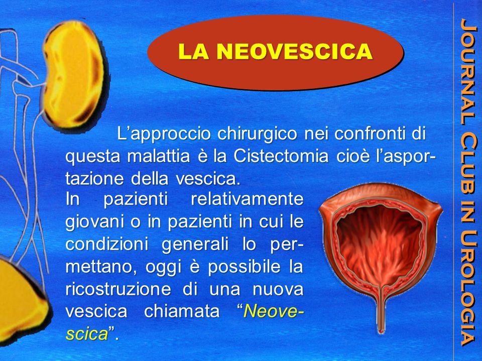 Journal Club in Urologia Lapproccio chirurgico nei confronti di questa malattia è la Cistectomia cioè laspor- tazione della vescica. Lapproccio chirur