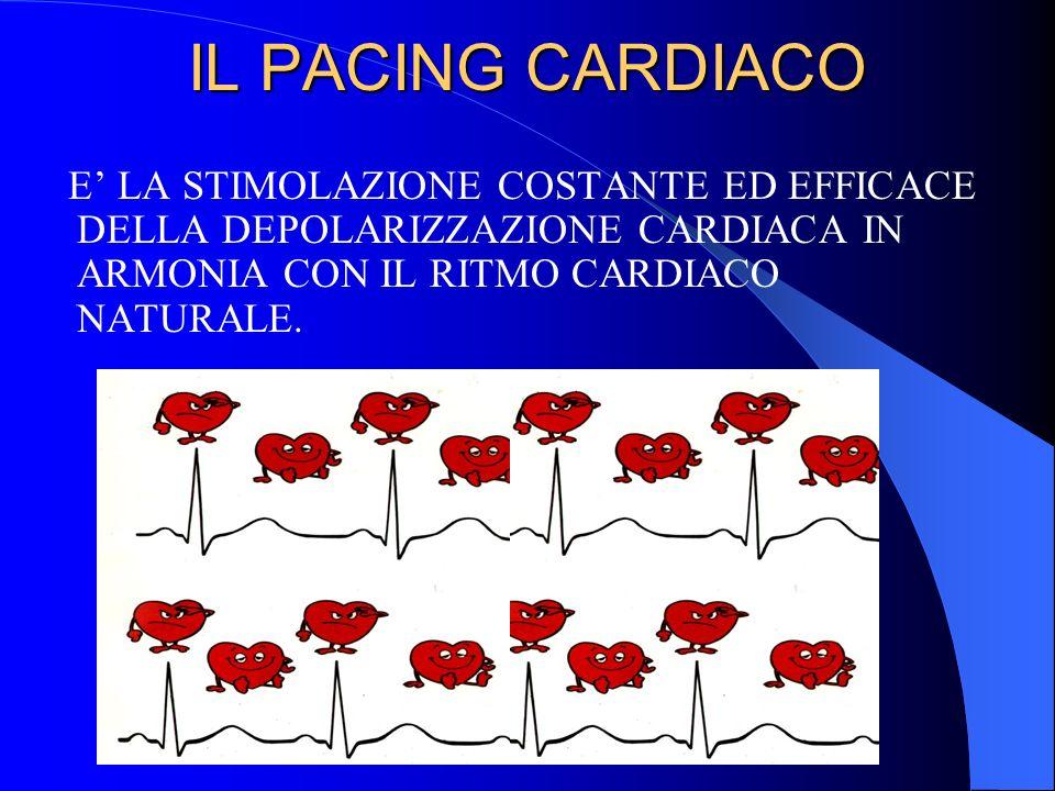 INDICAZIONI AD IMPIANTO DI PACEMAKER Disfunzione del sistema di conduzione elettrico BAV totale, blocco atrio-ventricolare avanzato, BAV II grado Mobitz 2, blocco trifascicolare (BBD alt.