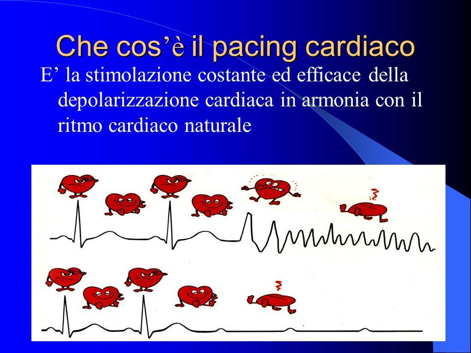 Che cos è cos è il pacing cardiaco E la stimolazione costante ed efficace della depolarizzazione cardiaca in armonia con il ritmo cardiaco naturale