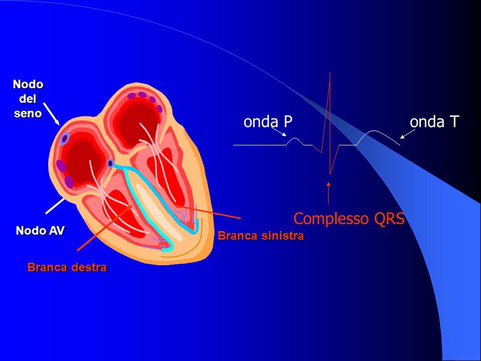 PARTI DI UN ELETTROCATETERE Un elettrocatetere è composto da 3 parti funzionali: – Lestremità prossimale, o connettore, che assicura il contatto elettrico permanente fra il pacemaker ed il conduttore – La parte centrale, o corpo del catetere, che serve a condurre i segnali dal pacemaker allelettrodo e viceversa – Lestremità distale, o elettrodo, provvisto di un sistema di fissazione al tessuto miocardico