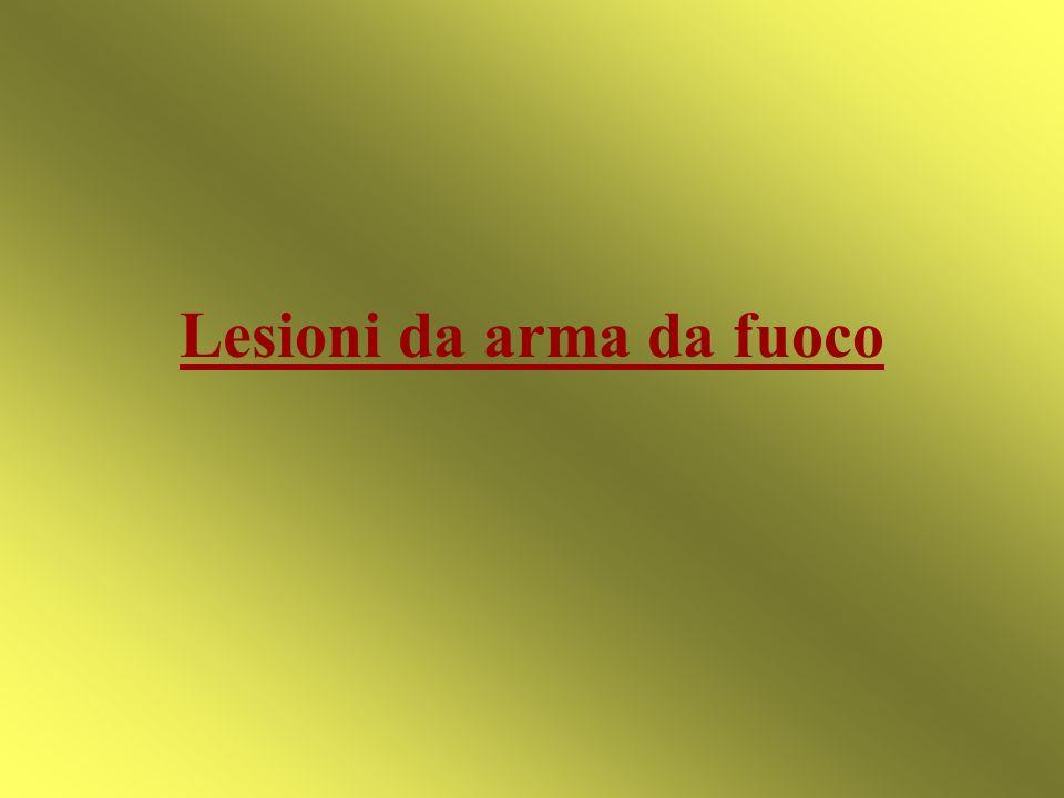 Lesioni da arma da fuoco