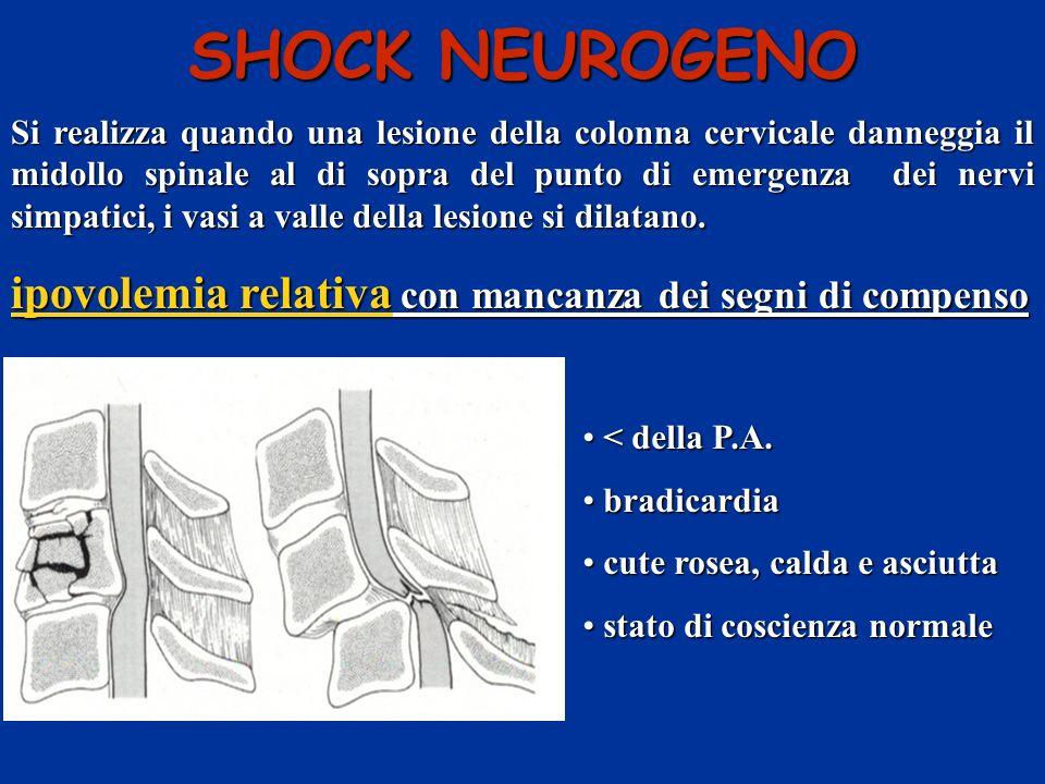Si realizza quando una lesione della colonna cervicale danneggia il midollo spinale al di sopra del punto di emergenza dei nervi simpatici, i vasi a v