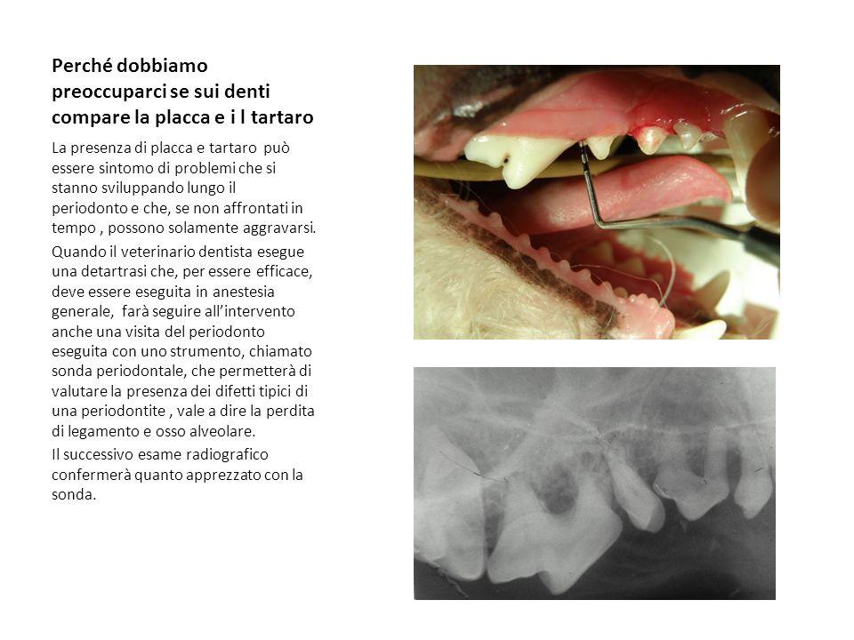 Perché dobbiamo preoccuparci se sui denti compare la placca e i l tartaro La presenza di placca e tartaro può essere sintomo di problemi che si stanno