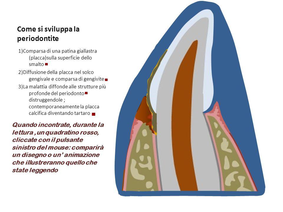 Come si sviluppa la periodontite 1)Comparsa di una patina giallastra (placca)sulla superficie dello smalto 2)Diffusione della placca nel solco gengiva
