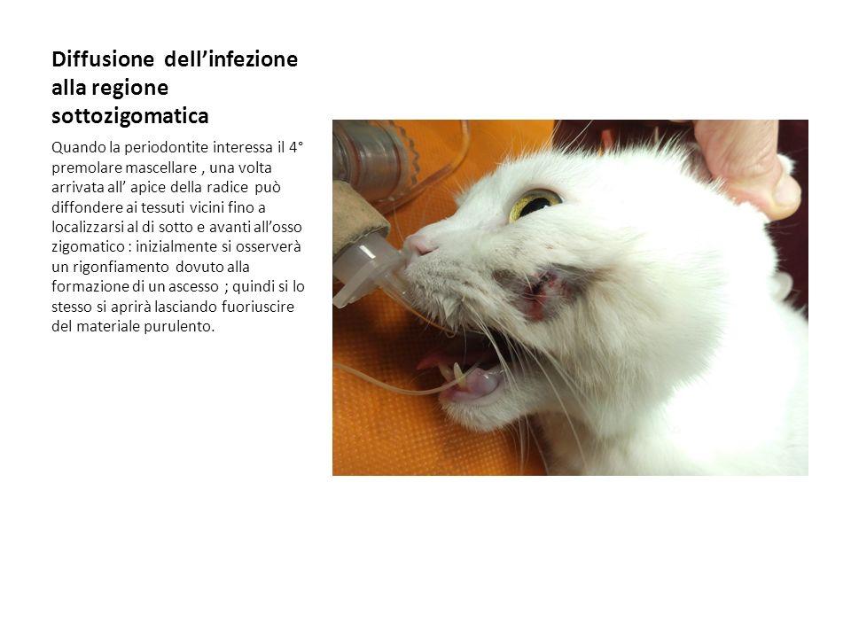 Diffusione dellinfezione alla regione sottozigomatica Quando la periodontite interessa il 4° premolare mascellare, una volta arrivata all apice della