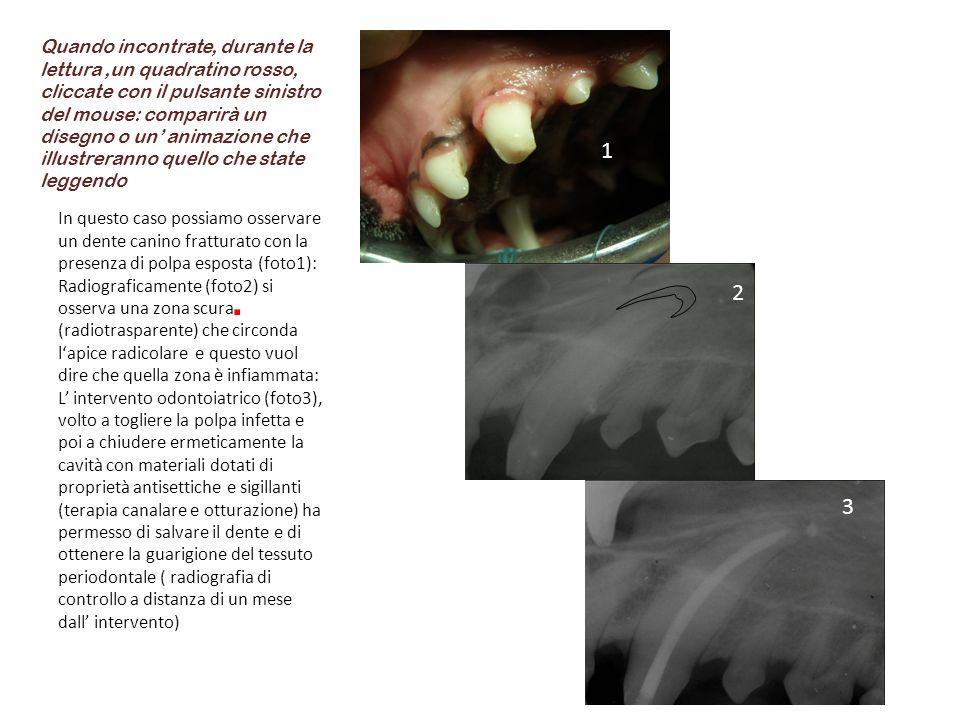 In questo caso possiamo osservare un dente canino fratturato con la presenza di polpa esposta (foto1): Radiograficamente (foto2) si osserva una zona s