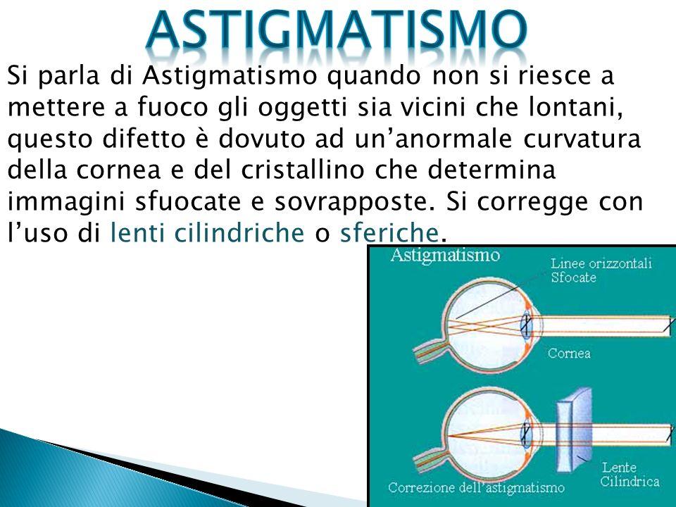 Si parla di Astigmatismo quando non si riesce a mettere a fuoco gli oggetti sia vicini che lontani, questo difetto è dovuto ad unanormale curvatura della cornea e del cristallino che determina immagini sfuocate e sovrapposte.