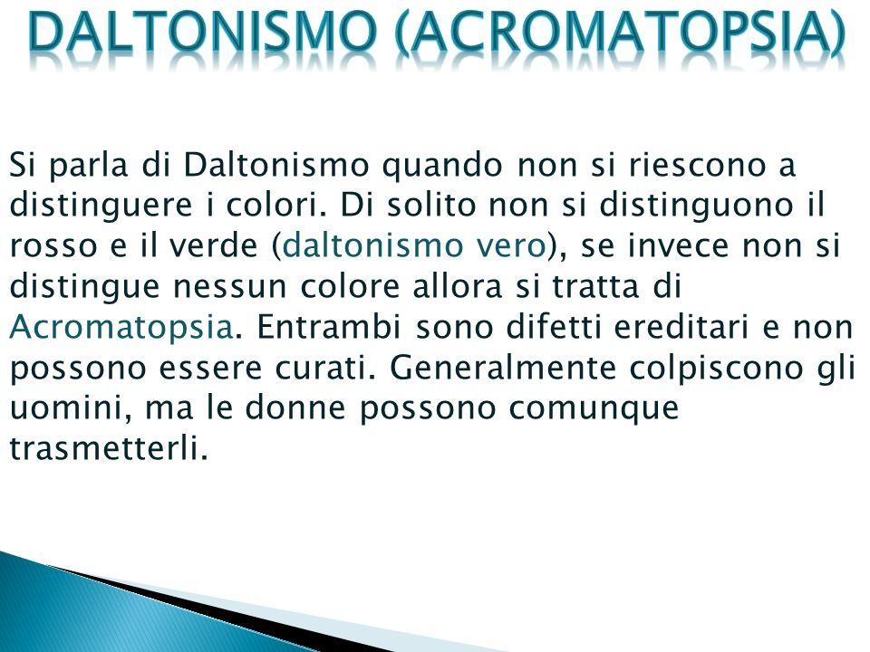 Si parla di Daltonismo quando non si riescono a distinguere i colori. Di solito non si distinguono il rosso e il verde (daltonismo vero), se invece no