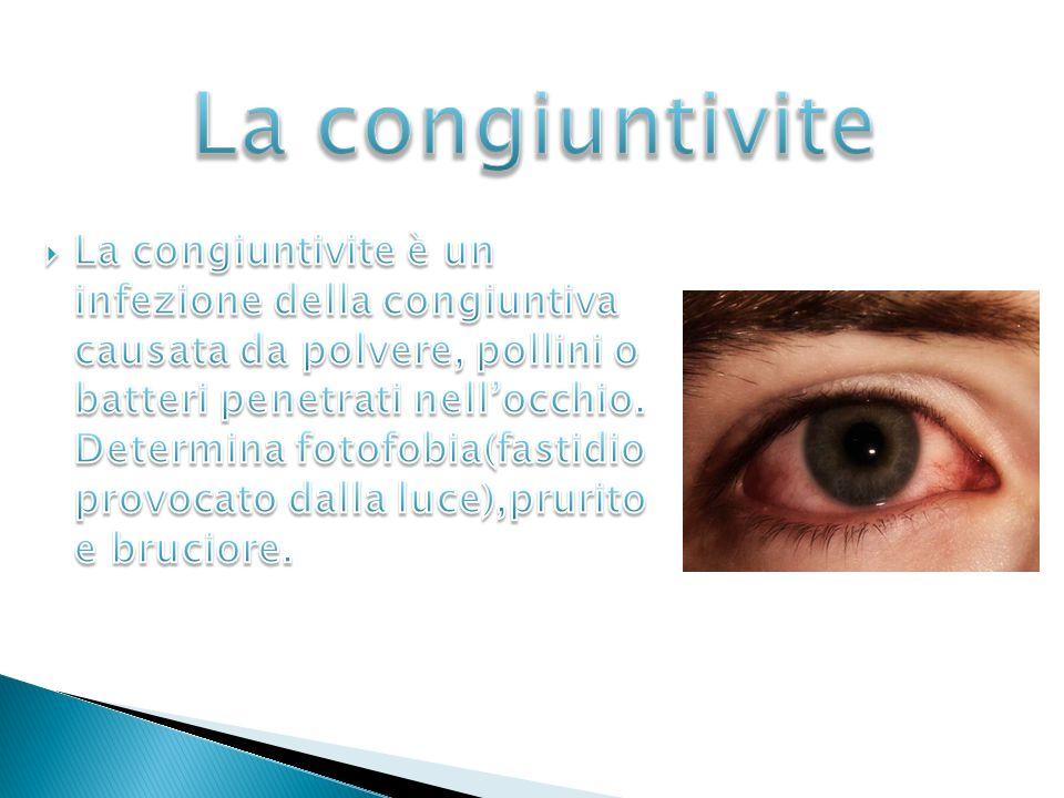 Si parla di Strabismo quando si verifica una non sincronia dei muscoli oculari; ciò determina il fatto che gli occhi non riescono a fissare lo stesso punto contemporaneamente.