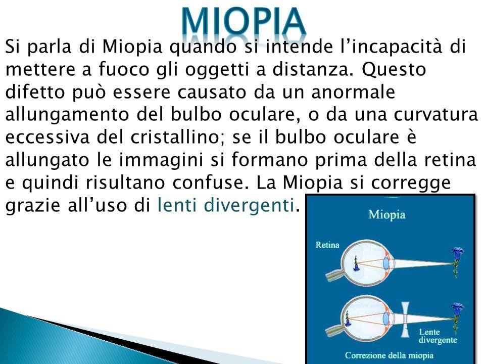 Si parla di Miopia quando si intende lincapacità di mettere a fuoco gli oggetti a distanza. Questo difetto può essere causato da un anormale allungame
