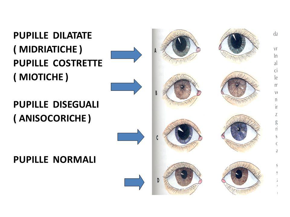 PUPILLE DILATATE ( MIDRIATICHE ) PUPILLE COSTRETTE ( MIOTICHE ) PUPILLE DISEGUALI ( ANISOCORICHE ) PUPILLE NORMALI