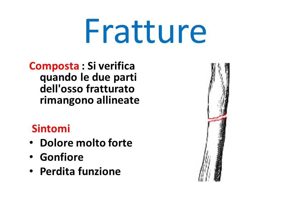 Fratture Composta : Si verifica quando le due parti dell osso fratturato rimangono allineate Sintomi Dolore molto forte Gonfiore Perdita funzione