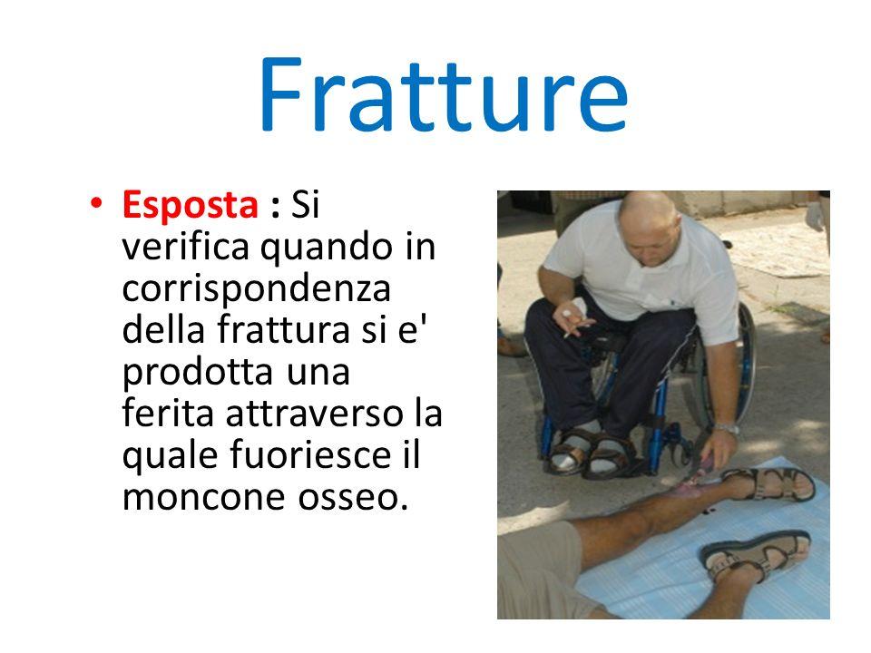 Fratture Esposta : Si verifica quando in corrispondenza della frattura si e' prodotta una ferita attraverso la quale fuoriesce il moncone osseo.