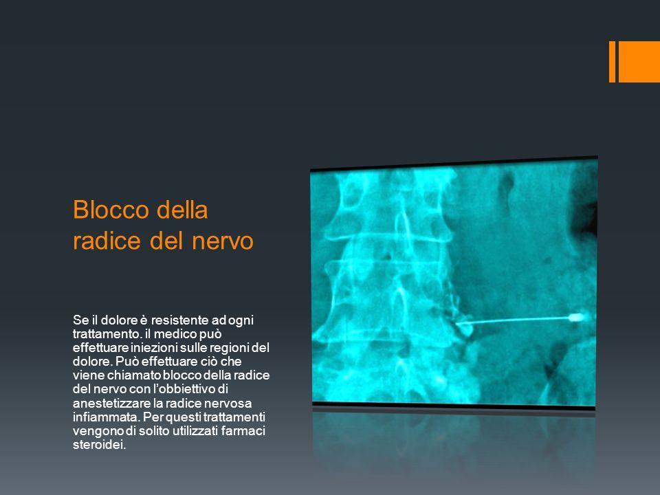Blocco della radice del nervo Se il dolore è resistente ad ogni trattamento.
