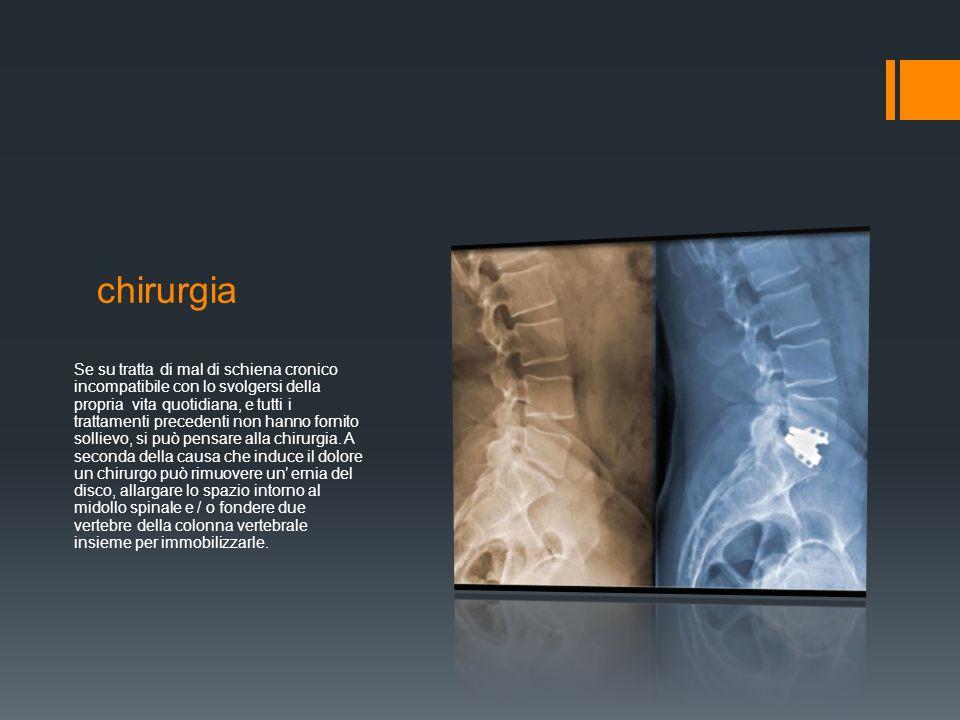 chirurgia Se su tratta di mal di schiena cronico incompatibile con lo svolgersi della propria vita quotidiana, e tutti i trattamenti precedenti non hanno fornito sollievo, si può pensare alla chirurgia.