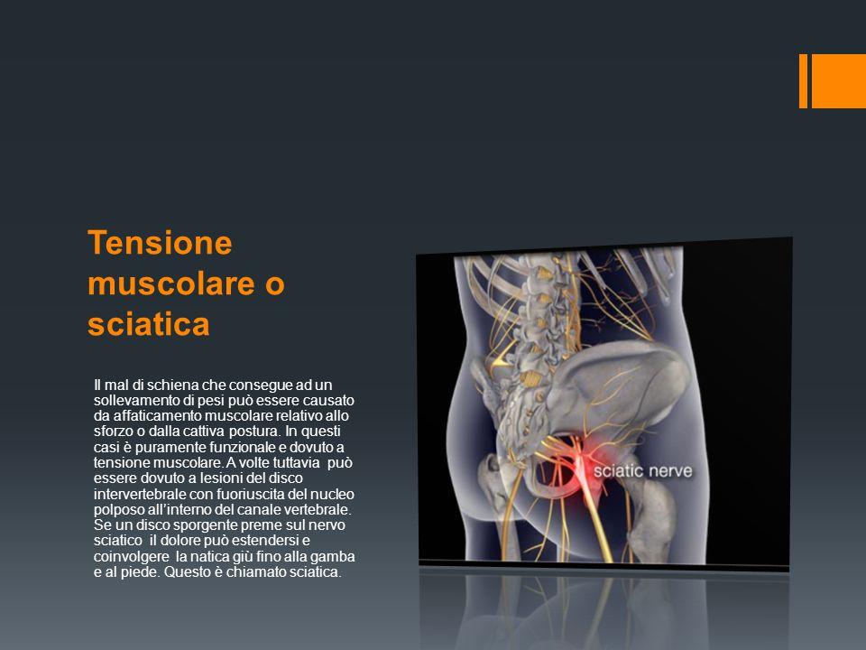 Tensione muscolare o sciatica Il mal di schiena che consegue ad un sollevamento di pesi può essere causato da affaticamento muscolare relativo allo sforzo o dalla cattiva postura.