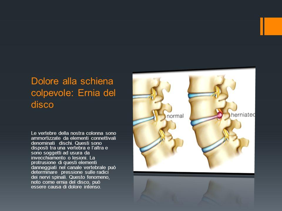 Dolore alla schiena colpevole: Ernia del disco Le vertebre della nostra colonna sono ammortizzate da elementi connettivali denominati dischi.