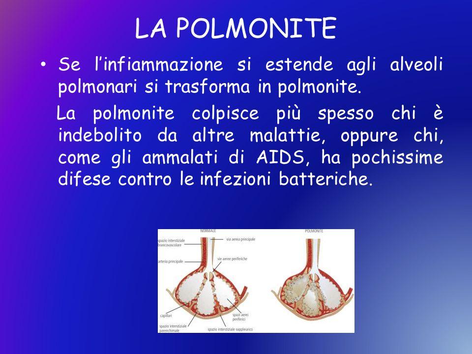 LA POLMONITE Se linfiammazione si estende agli alveoli polmonari si trasforma in polmonite. La polmonite colpisce più spesso chi è indebolito da altre
