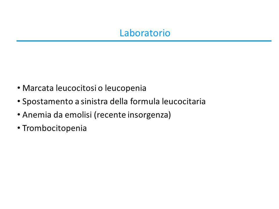 Laboratorio Marcata leucocitosi o leucopenia Spostamento a sinistra della formula leucocitaria Anemia da emolisi (recente insorgenza) Trombocitopenia