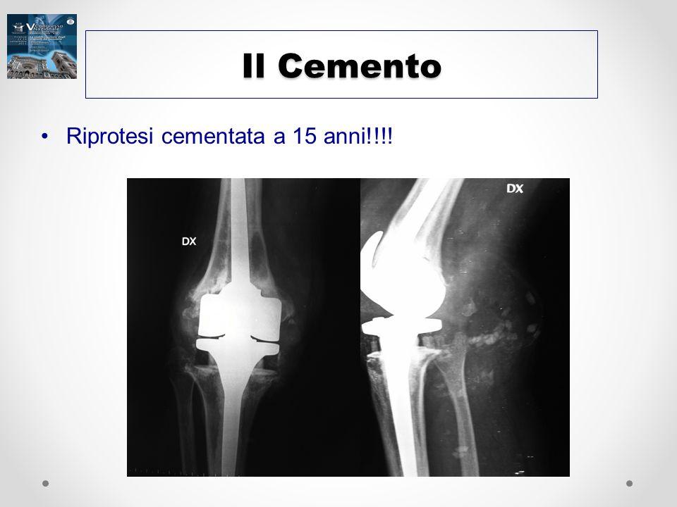 Il Cemento Riprotesi cementata a 15 anni!!!!