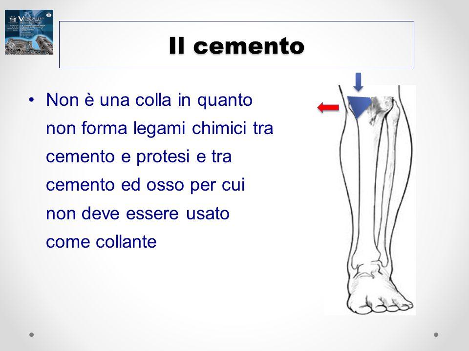 Il cemento Non è una colla in quanto non forma legami chimici tra cemento e protesi e tra cemento ed osso per cui non deve essere usato come collante