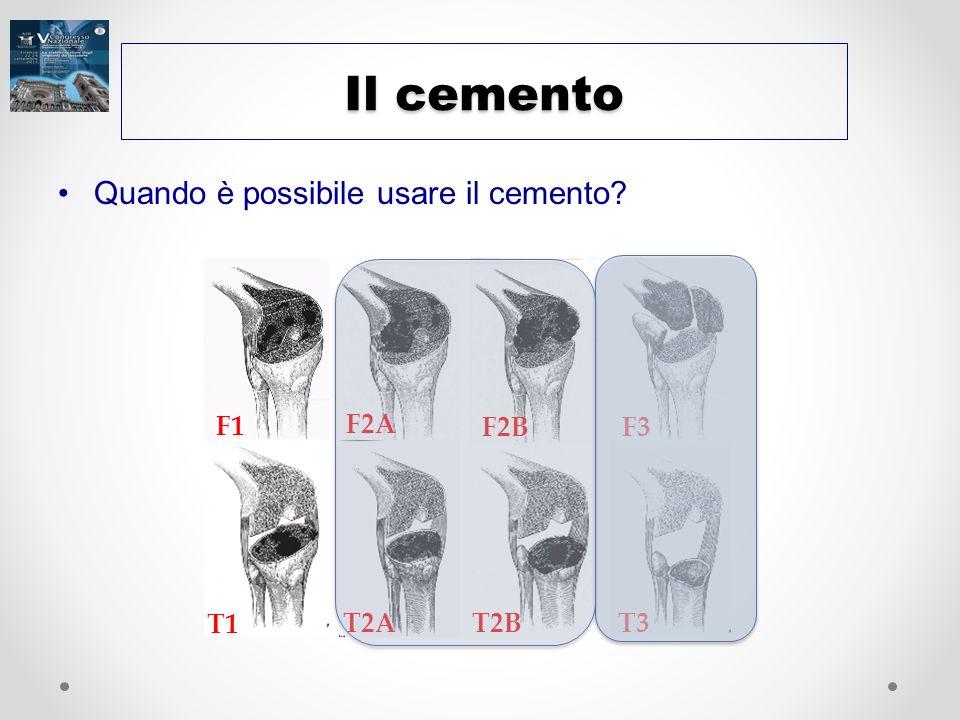 Il cemento Quando è possibile usare il cemento? F2A F3 F2B F1 T2B T2A T1 T3