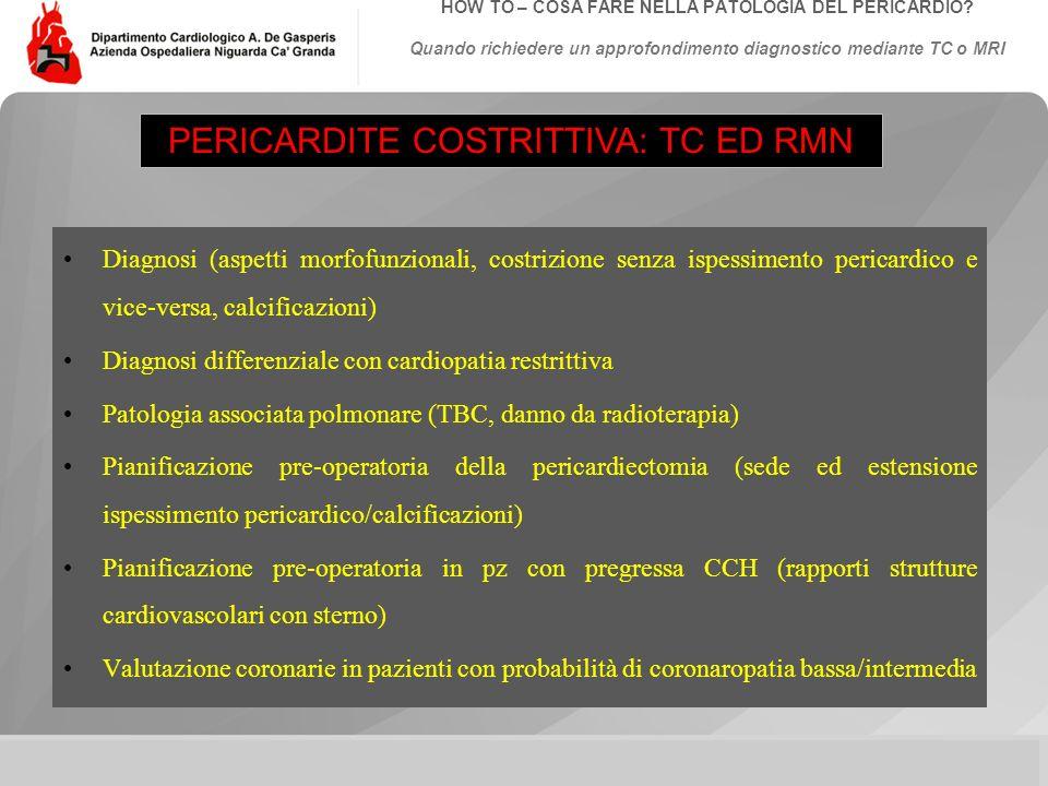 Data: Evento:Autore: Titolo: HOW TO – COSA FARE NELLA PATOLOGIA DEL PERICARDIO? Quando richiedere un approfondimento diagnostico mediante TC o MRI Dia