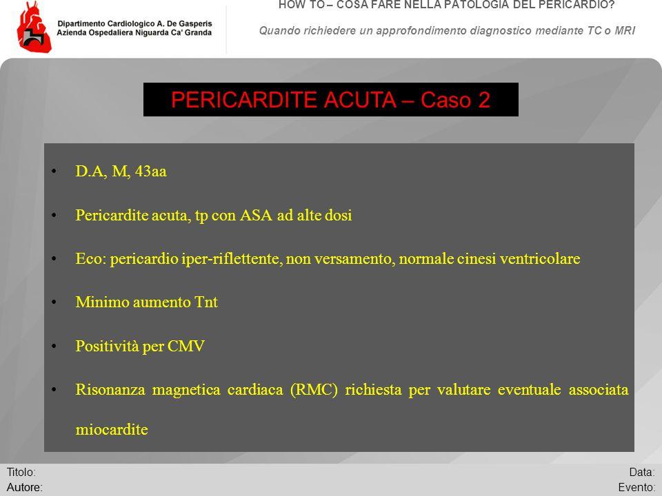 Data: Evento:Autore: Titolo: HOW TO – COSA FARE NELLA PATOLOGIA DEL PERICARDIO? Quando richiedere un approfondimento diagnostico mediante TC o MRI D.A