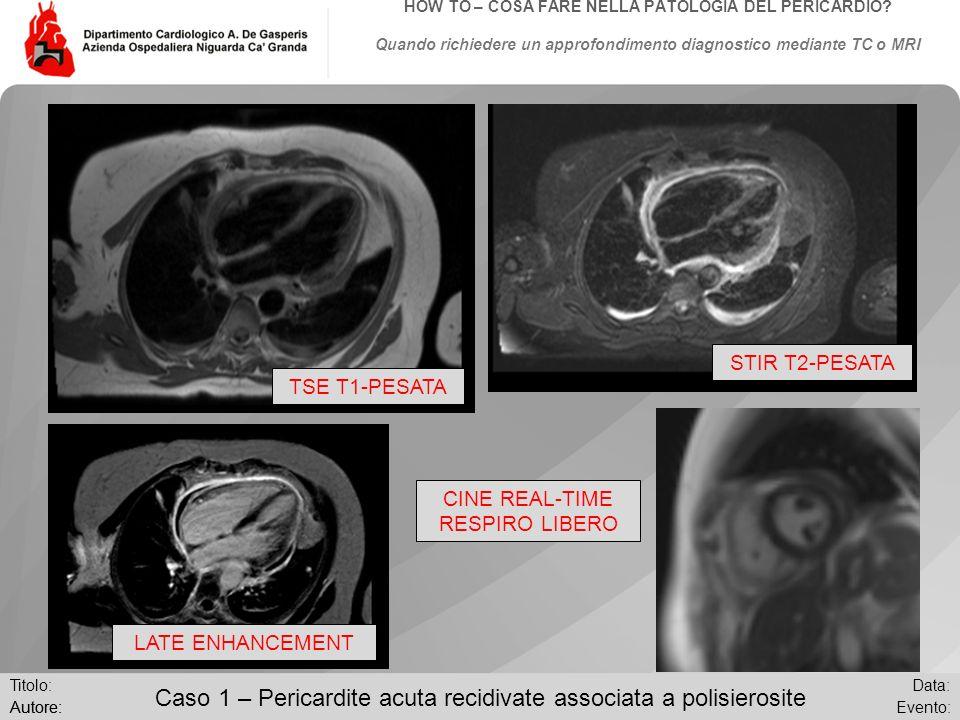 Data: Evento:Autore: Titolo: HOW TO – COSA FARE NELLA PATOLOGIA DEL PERICARDIO? Quando richiedere un approfondimento diagnostico mediante TC o MRI Cas