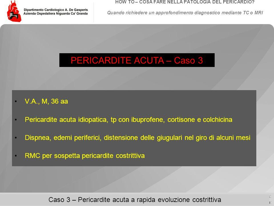 Data: Evento:Autore: Titolo: HOW TO – COSA FARE NELLA PATOLOGIA DEL PERICARDIO.