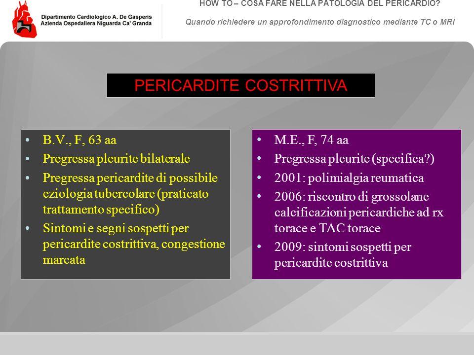 Data: Evento:Autore: Titolo: HOW TO – COSA FARE NELLA PATOLOGIA DEL PERICARDIO? Quando richiedere un approfondimento diagnostico mediante TC o MRI PER