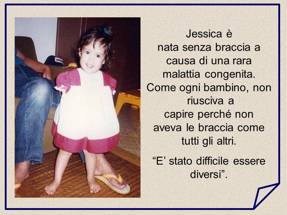 Jessica è nata senza braccia a causa di una rara malattia congenita.