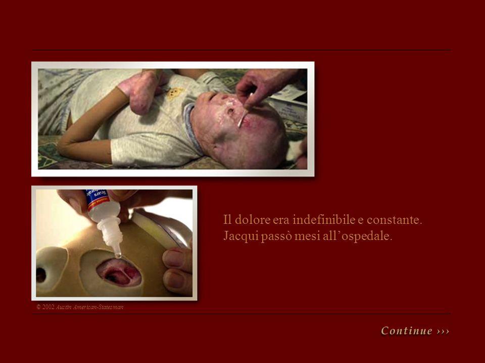 Il dolore era indefinibile e constante. Jacqui passò mesi allospedale. © 2002 Austin American-Statesman