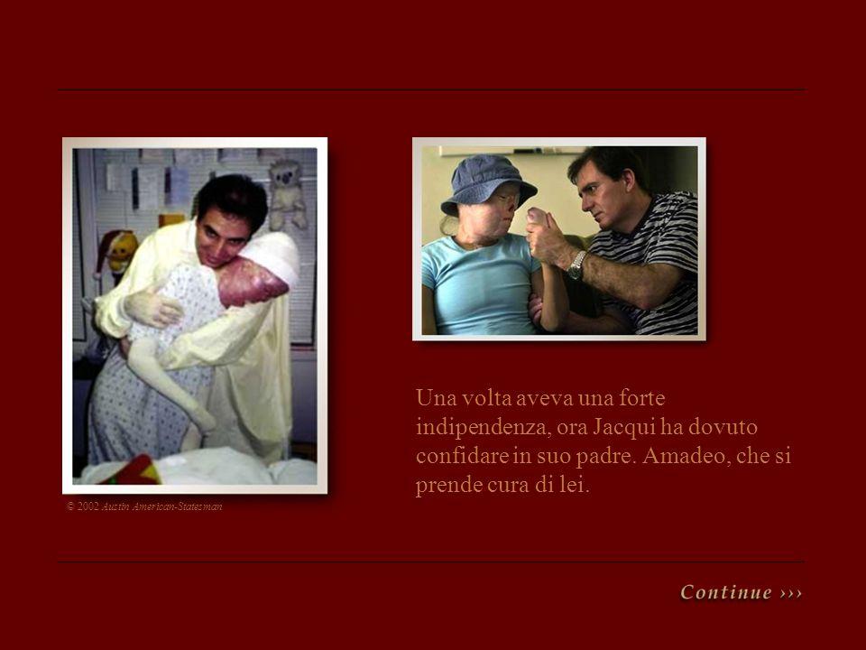 Una volta aveva una forte indipendenza, ora Jacqui ha dovuto confidare in suo padre. Amadeo, che si prende cura di lei. © 2002 Austin American-Statesm