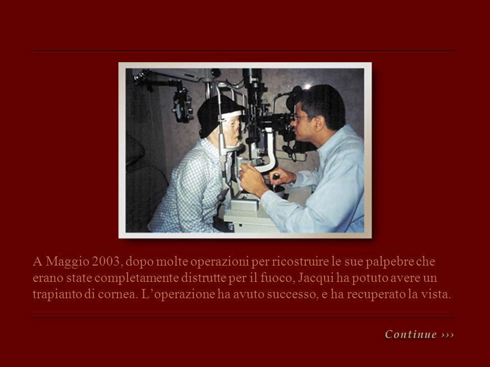 A Maggio 2003, dopo molte operazioni per ricostruire le sue palpebre che erano state completamente distrutte per il fuoco, Jacqui ha potuto avere un t