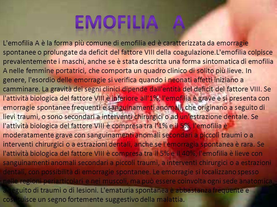 L'emofilia A è la forma più comune di emofilia ed è caratterizzata da emorragie spontanee o prolungate da deficit del fattore VIII della coagulazione.