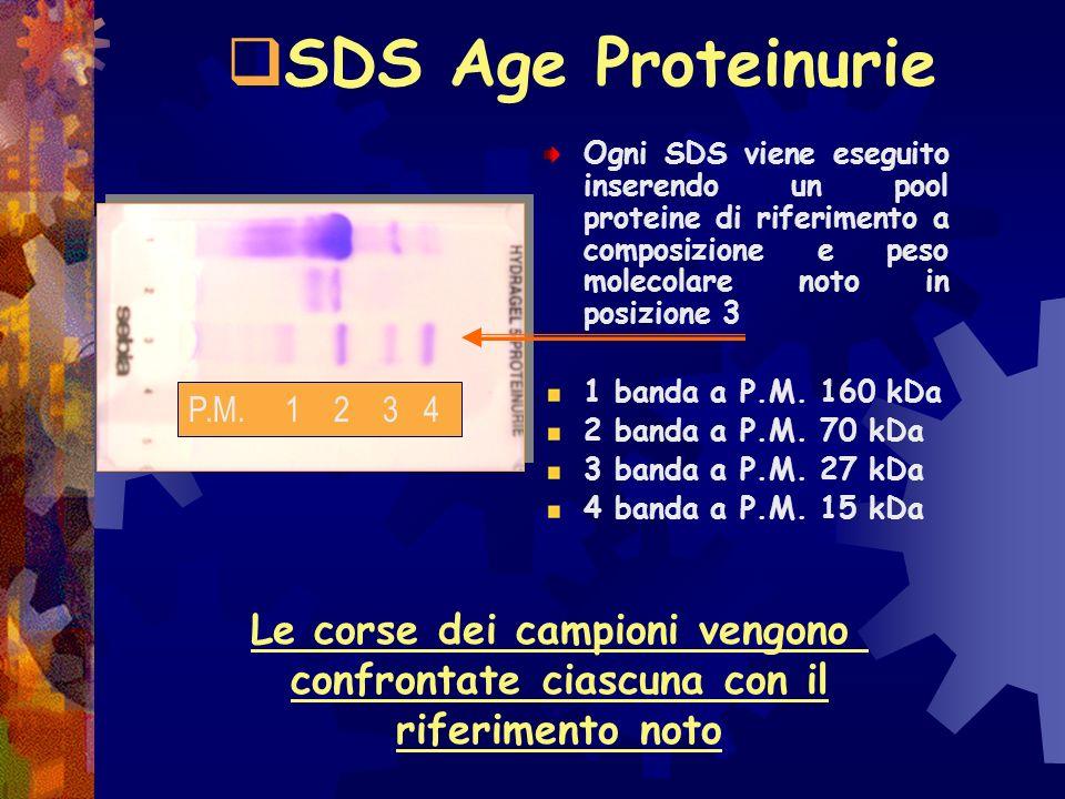 Analisi quali-quantitativa per peso molecolare delle proteine urinarie SDS Age Proteinurie PROTEINE TUBULARI < 70 KdA Beta2microglobuline 12 kDa Lisoz