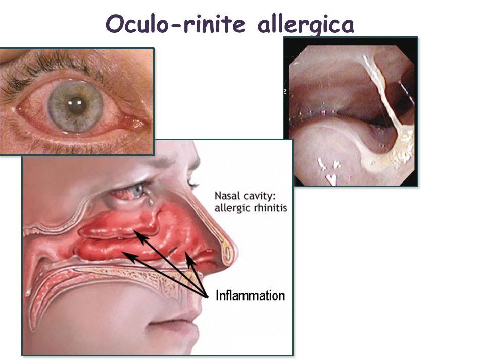 Oculo-rinite allergica
