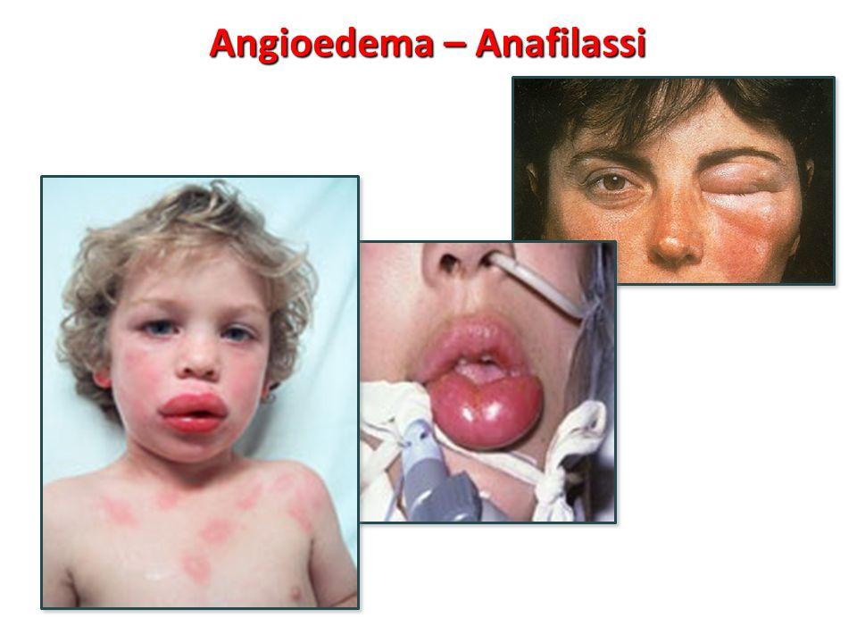 Angioedema – Anafilassi