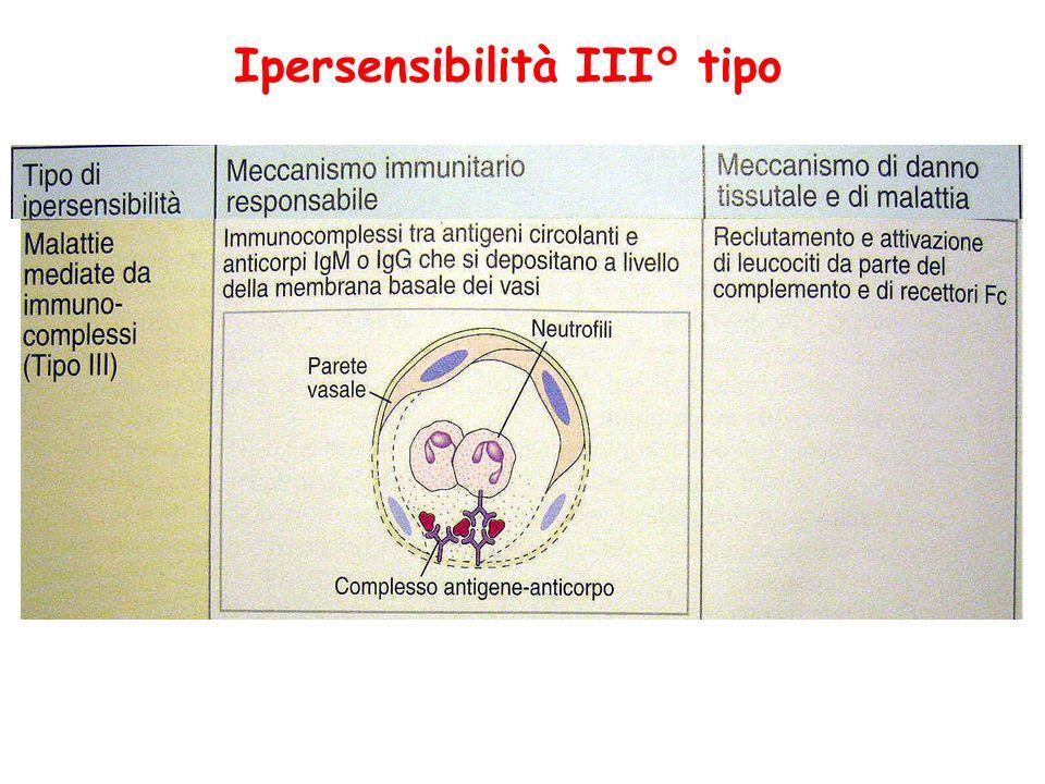 Ipersensibilità III° tipo