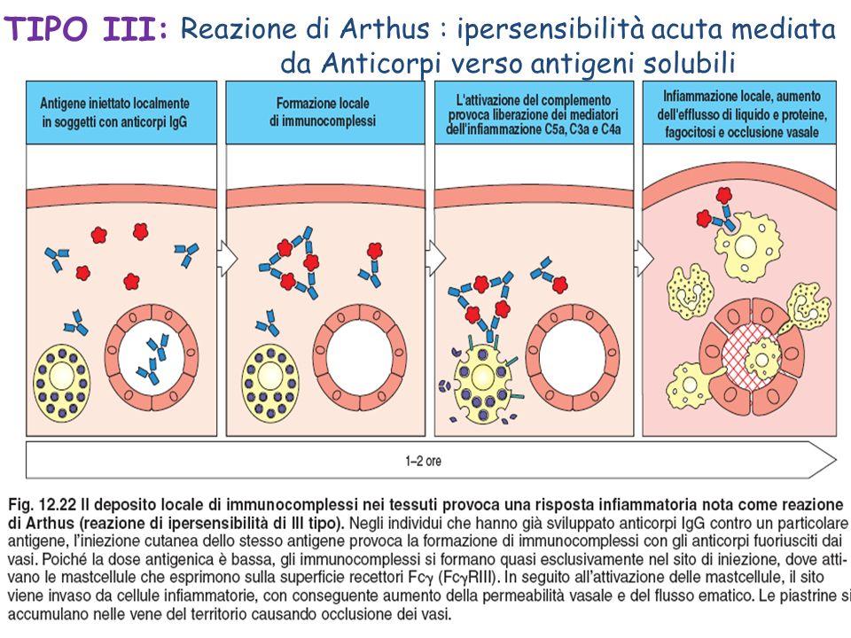 TIPO III: Reazione di Arthus : ipersensibilità acuta mediata da Anticorpi verso antigeni solubili